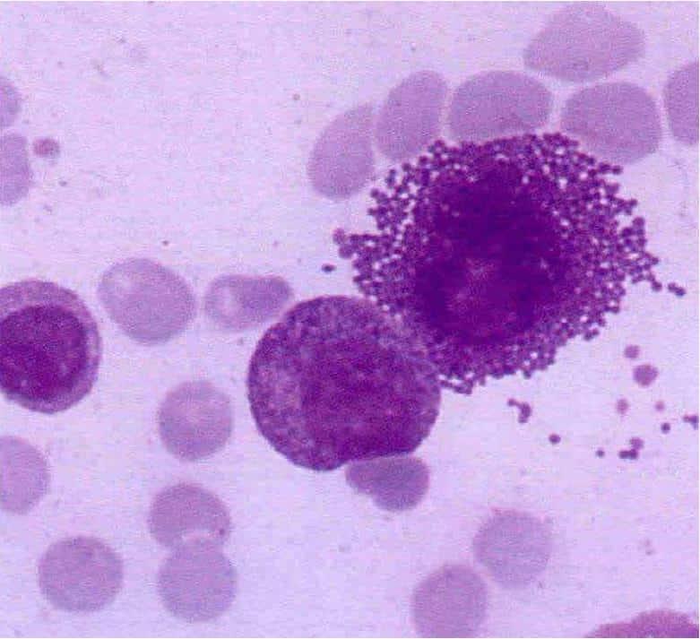 Células cebadas