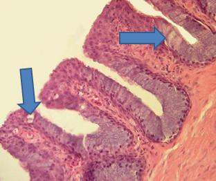 Cuáles son las funciones de las células caliciformes